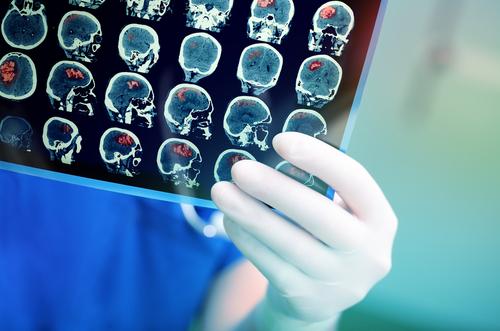 脳腫瘍を克服した男性がCBDオイルにぞっこんの理由